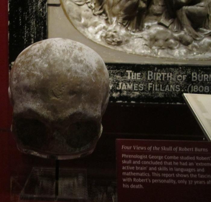 Burns' skull